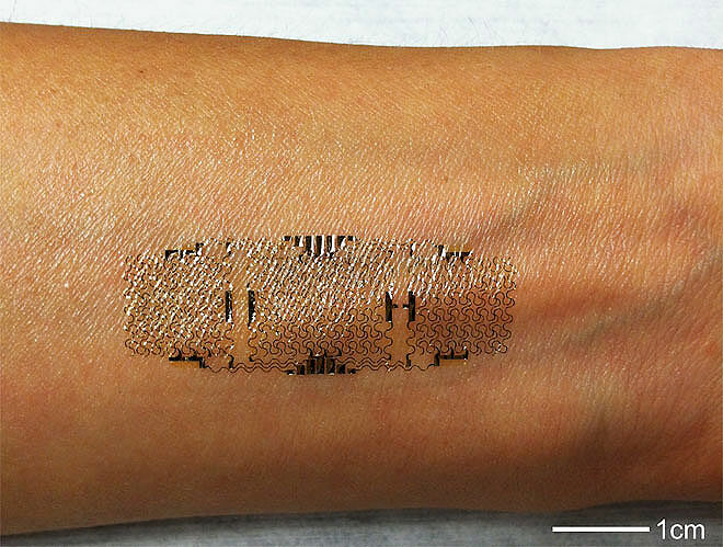 Subdermal Implant Smart Tattoo.