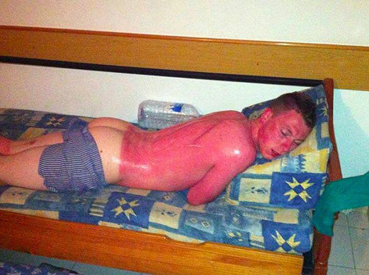 These People Stayed Out In The Sun A Little Too Long And Look What Happened