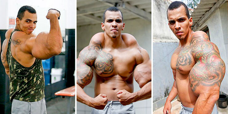 Hulk-like Bodybuilder Nearly Lost Both His Arms