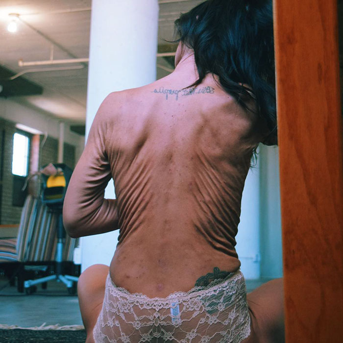 26 Year Old Model Sara Geurts With Ehlers-Danlos syndrome 02.