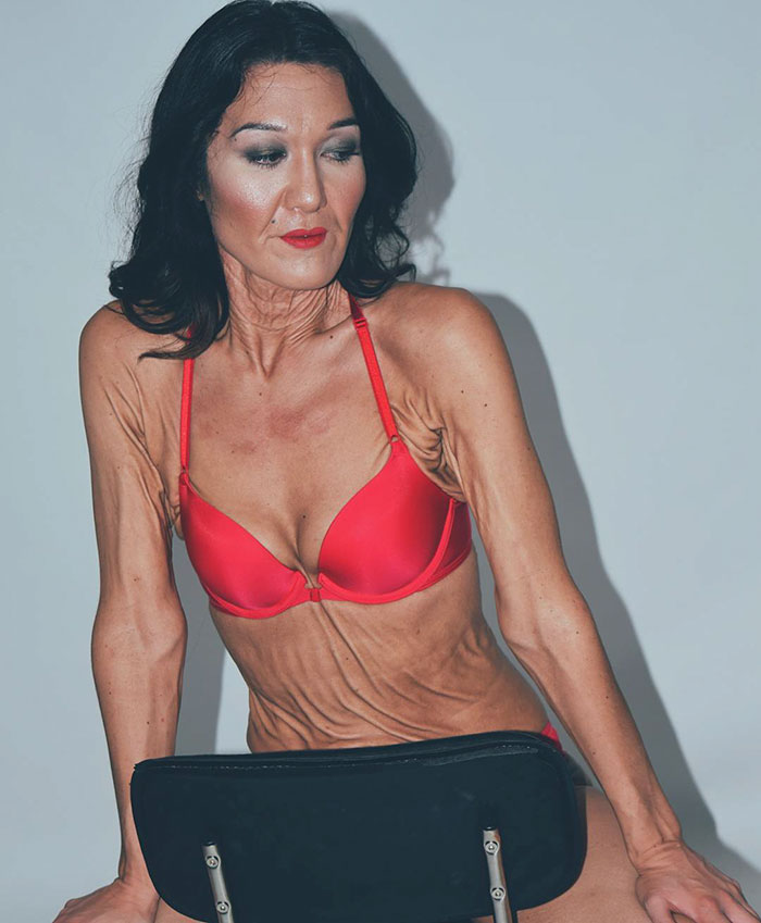 26 Year Old Model Sara Geurts With Ehlers-Danlos syndrome 04.