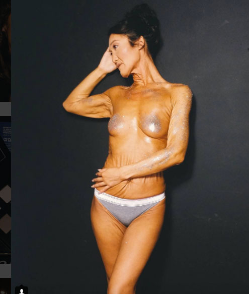 26 Year Old Model Sara Geurts With Ehlers-Danlos syndrome 10.
