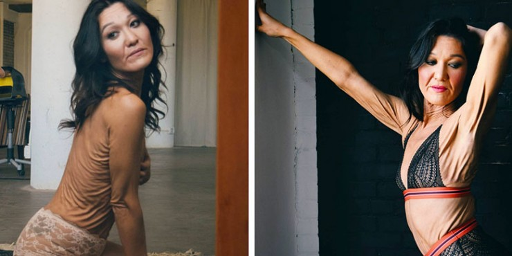 26 Year Old Model Sara Geurts With Ehlers-Danlos syndrome 11.